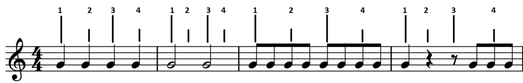 Syncopation Synkope Fillings